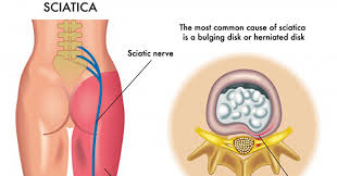 Sciatica Treatment New Jersey